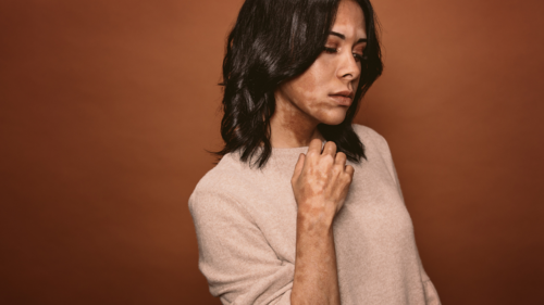 maquillaje-vitiligo-cara