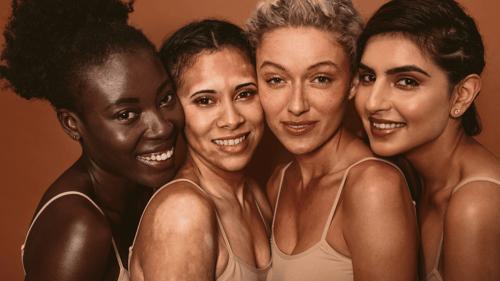 maquillaje-vitiligo