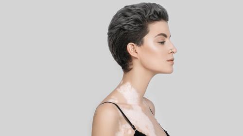 mujer-vitiligo